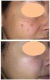 trattamento macchie con laser q-switched