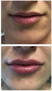 Trattamento filler labbra con acido ialuronico