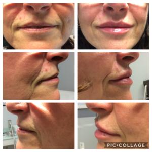 trattamento estetico filler labbra